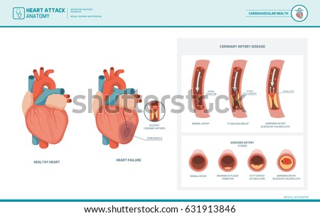 Heart attack and atherosclerosis medical illustration: healthy and damaged heart, blood vessel section with fatty deposit accumulation