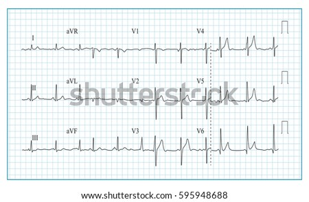 Heart Cardiogram Chart Vector. Illustration Of Wave Form On Checked Ecg Graph.