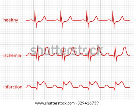 Heart cardiogram vector charts set. Healthy heart rhythm, ischemia, infarction. Vitality heartbeat, heart electrocardiogram, pulse line, vector illustration