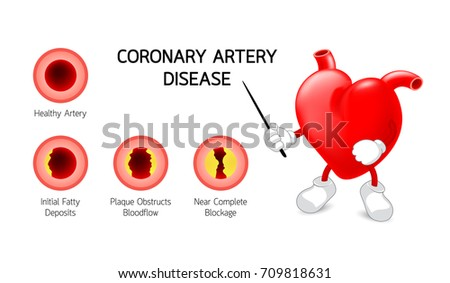 heart character with Coronary Artery Disease info graphic. Heart awareness concept. Atherosclerosis stages. adjournment the cholesterol plaques in arteries. Illustration isolated on white background.