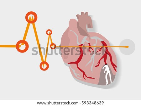 Heart Monitor from health to deadly sign. Acute Myocardial infarction or commonly known as heart attack concept. Editable Clip Art.