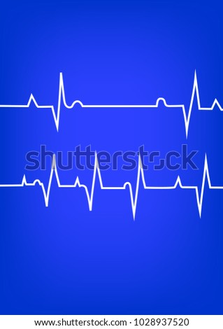 Heart rate graphic. Vector illustration. (Electrocardiogram or ECG) set