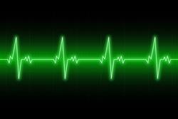 Heartbeats cardiogram. EKG heart line. Green electrocardiogram background. Vector illustration.