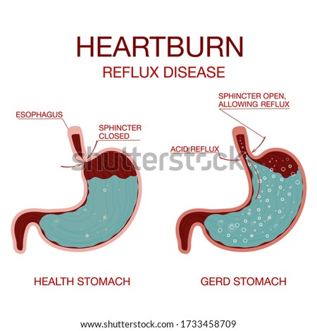 Heartburn and Gastroesophageal Reflux Disease GERD.Gastritis and acid reflux, indigestion and stomach pain problems. Stomach acid moving up into the esophagus causing acid reflux symptoms.