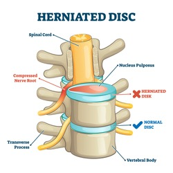 Herniated disc injury 3D side view on spinal bone skeleton vector illustration. Medical condition with back trauma pain and nerve root compression by nucleus pulposus. Problematic example comparison.