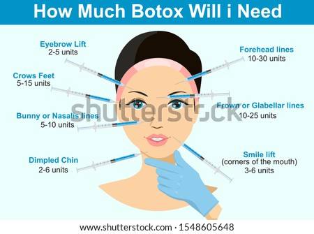 How much Botox will I need. Infographics. Botox injection. Woman facial wrinkle treatment. Photo stock ©