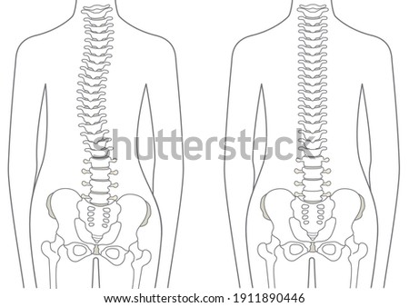 human body normal spine and