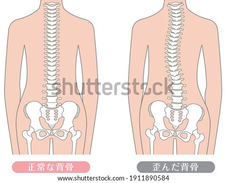 Human body Normal spine and distorted spine  Described as normal spine and distorted spine in Japanese
