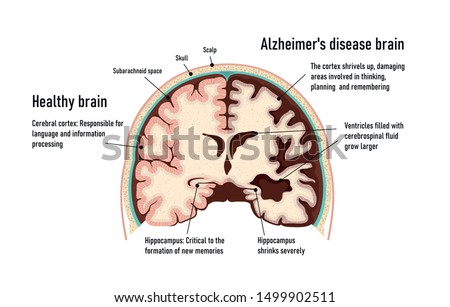 Human brain.  Healthy and brain with Alzheimer's disease