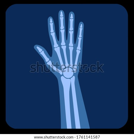 Human forearm anatomy, x ray view. Wrist and Hand Bones on reontgen. Vector illustration isolated on white background. skeletal system silhouette. Medical, educational and science banner Foto stock ©