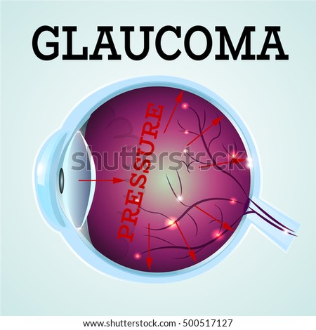 Human Glaucoma disease anatomy structure.Medical infographics for ophthalmology clinic,vector illustration.Cause of disease,eye anatomy - high level pressure,Medical infographics for optician clinic.