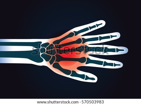 human hand bone have a red