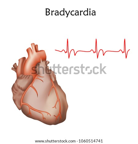 Human heart. Bradycardia. Anatomy illustration. Red image, white background. Heartbeat, pulse.