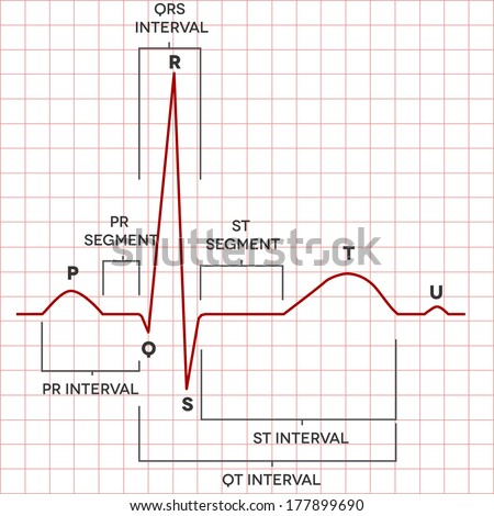Human heart normal sinus rhythm, electrocardiogram record. Medical illustration.