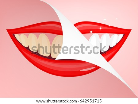human mouth with white teeth