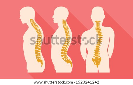 Human spine disease icon. Flat illustration of human spine disease vector icon for web design