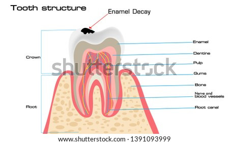 human tooth structure vector diagram and caries stages  dental anatomy and tooth  decay or cavities
