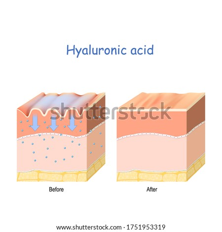 Hyaluronic acid. skin-care products. skin rejuvenation with help of hyaluronic acid. wrinkles on the human skin. Before and after use of the hyaluronic acid