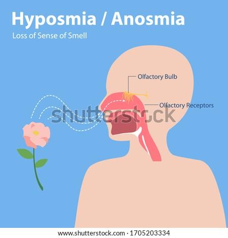 Hyposmia Anosmia, Loss of Sense of Smell Info graphic elements the signs of corona virus Symptoms , Health care concept. Foto d'archivio ©