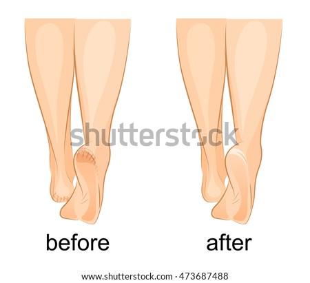 illustration of a female feet