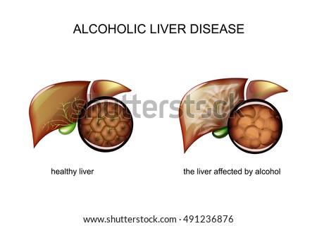 illustration of a healthy liver