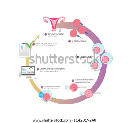 Illustration of an IVF cycle in combination with preimplantation genetic testing