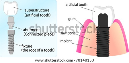 illustration of dental implant and its elements