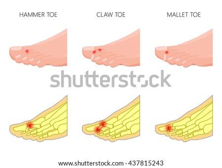 illustration of the deformation