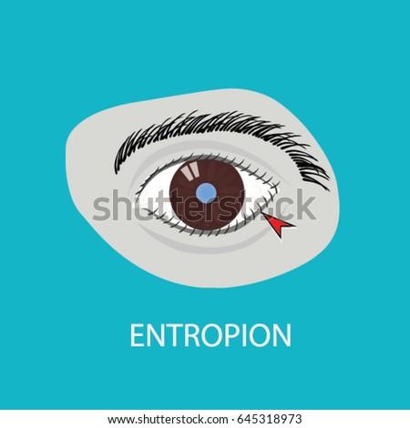illustration of the eye disease
