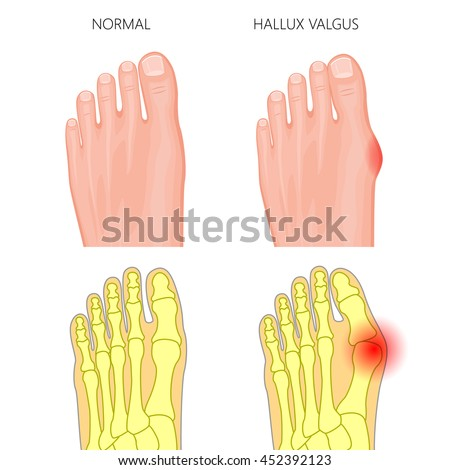 illustration of the normal foot