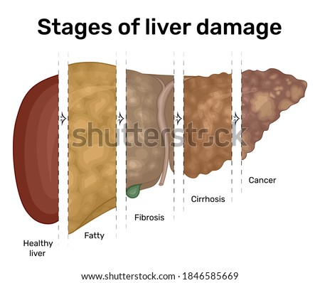 Illustration of the progression of liver disease from fatty liver to cancer Сток-фото ©