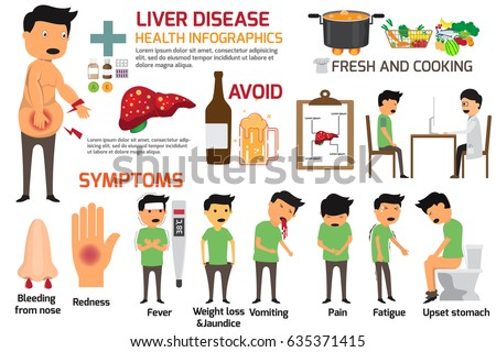 Infographics of sign and symptoms of liver disease. health care and medical vector illustration.
