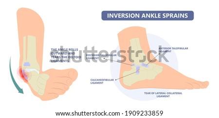 injury Talo Fibular foot treat high low roll twist tear tough bands bone joint range of motion Pain foot broken leg fall jump Walking exercising sport R.I.C.E rice Rest Ice break tendon Grade fibers