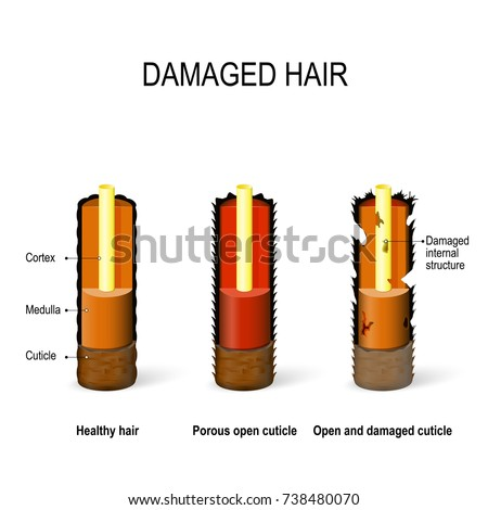 internal structure of the Healthy and damaged hair: cuticle, cortex, medulla. Porous, Open and damaged cuticle