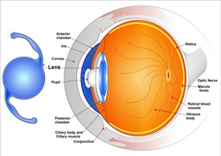 Intraocular lenses: (IOLs) are medical devices that are implanted inside the eye to replace the eye's natural lens when it is removed during cataract surgery.