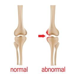 Joint pain illustration. Bone pain. Ache. Arthritis. Orthopedic medical concept.