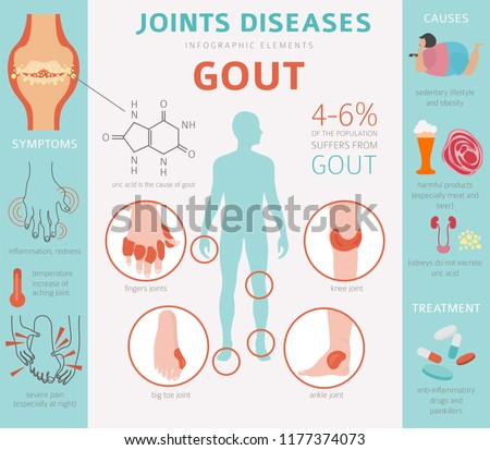 Joints diseases. Gout symptoms, treatment icon set. Medical infographic design. Vector illustration