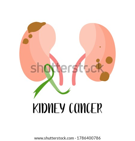 Kidney cancer, carcinoma. Kelly green awareness ribbon. Oncology. Vector flat illustration, isolated on white. Perfect for flyer, medical brochure, banner, website