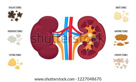 Kidneys stones types. Flat vector illustration: oxalate stones, phosphate, cystine, urate, xanthine, struvite stones. Internal human organ anatomy. Realistic detailed graphic. Kidney stone disease.