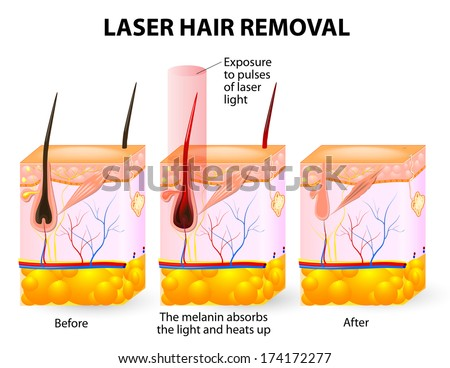 laser emits an invisible light which penetrates the skin without damaging it. At the hair follicle, the laser light absorbed by the pigments is converted into heat. This heat will damage the follicle.