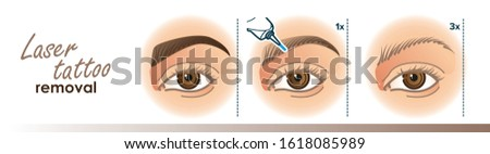 Laser permanent makeup removal stages illustration. Eyebrow tattoo removal procedure. For your design