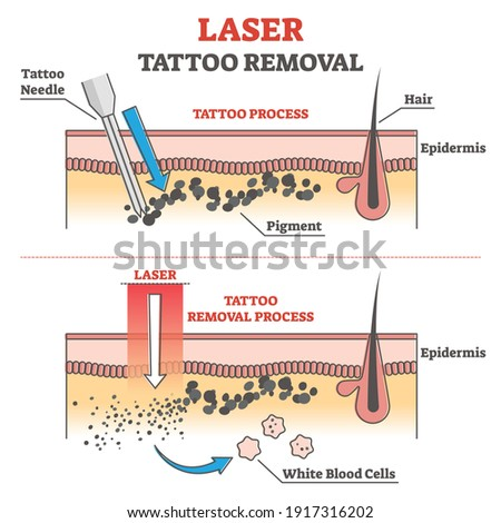 Laser tattoo removal process labeled educational explanation outline concept. Anatomical epidermis side view with pigment under skin vector illustration. Professional cosmetic procedure to erase ink.