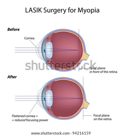Lasik Hsa Eligible Expense