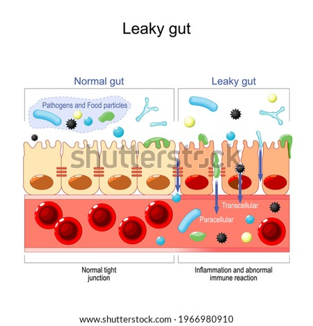 leaky gut. cells on gut lining held tightly together. in intestine with celiac disease and gluten sensitivity these tight junctions come apart. autoimmune disorder. Vector illustration Stock photo ©