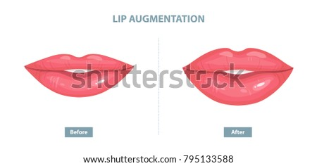 lip augmentation before and