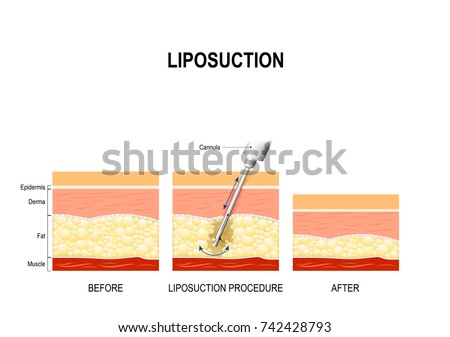 liposuction procedure. Before and after. fat modeling and surgery