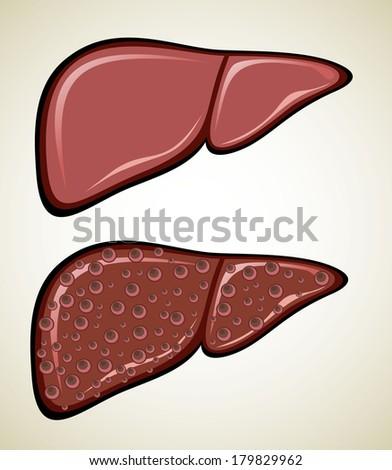 Liver Cirrhosis disease - stock vector