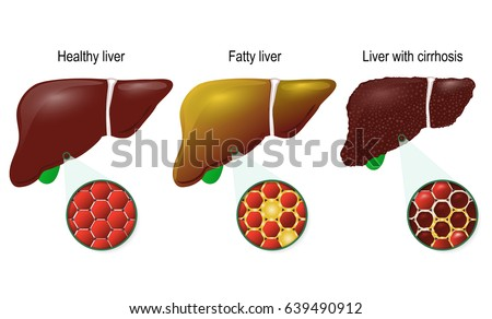 Liver disease. Healthy, fatty and cirrhosis of the liver. liver cells (hepatocyte).