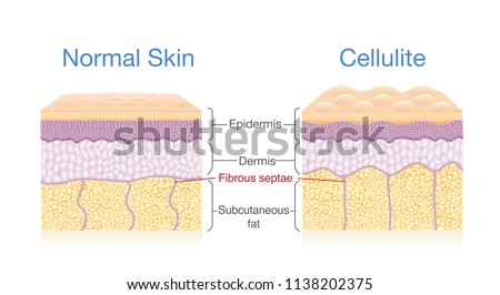 llustration for compare normal skin layer and skin with Cellulite. Illustration about medical diagram. Сток-фото ©