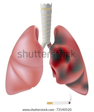 Lung half healthy and half diseased with cancer